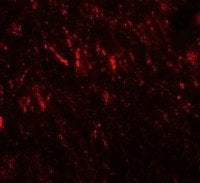 Immunocytochemistry/ Immunofluorescence - Anti-Prickle 2 antibody (ab211419)