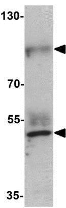 Western blot - Anti-Prickle 2 antibody (ab211419)
