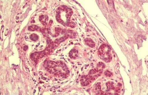 Immunohistochemistry (Formalin/PFA-fixed paraffin-embedded sections) - Anti-SIK3 antibody - C-terminal (ab211424)