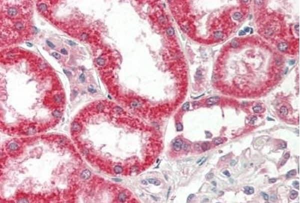 Immunohistochemistry (Formalin/PFA-fixed paraffin-embedded sections) - Anti-FGF19 antibody [FG98-6] (ab211431)