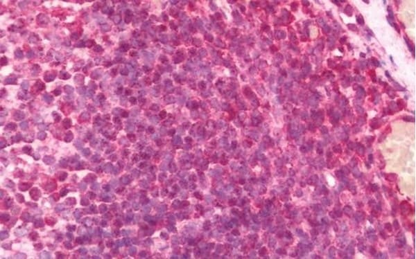 Immunohistochemistry (Formalin/PFA-fixed paraffin-embedded sections) - Anti-RME-8 antibody (ab211433)