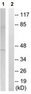 Western blot - Anti-AGPAT3 antibody (ab211435)