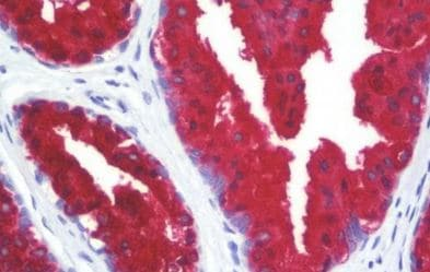 Immunohistochemistry (Formalin/PFA-fixed paraffin-embedded sections) - Anti-Cytokeratin 18 antibody [C-04] (Biotin) (ab211441)