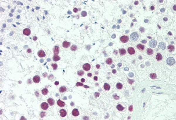 Immunohistochemistry (Formalin/PFA-fixed paraffin-embedded sections) - Anti-SRP54 antibody (ab211476)