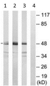 Western blot - Anti-SEPT7 antibody (ab211482)
