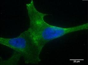 Immunocytochemistry/ Immunofluorescence - Anti-PLA2R antibody [12-6-5] (ab211490)