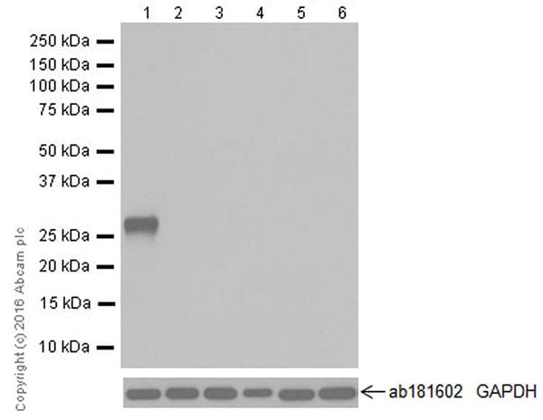 Western blot - Anti-Trypsin antibody [EPR19498-15] (ab211491)
