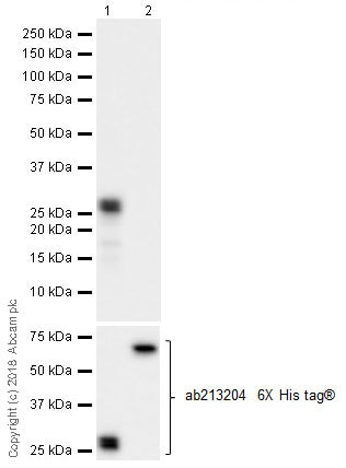 Western blot - Anti-MEF2C antibody [EPR19089-202] - ChIP Grade (ab211493)