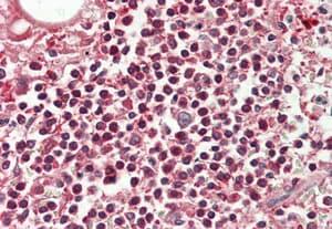 Immunohistochemistry (Formalin/PFA-fixed paraffin-embedded sections) - Anti-GTF2H4 antibody (ab211510)