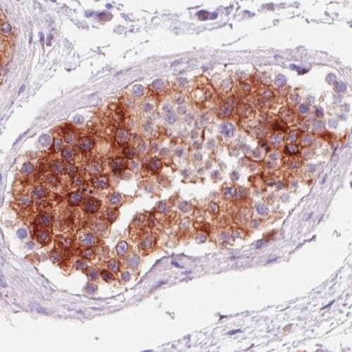 Immunohistochemistry (Formalin/PFA-fixed paraffin-embedded sections) - Anti-P4HA2 antibody [CL0351] (ab211527)