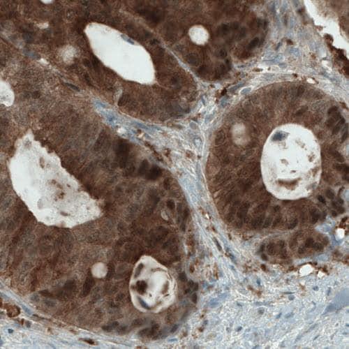 Immunohistochemistry (Formalin/PFA-fixed paraffin-embedded sections) - Anti-NAPRT1 antibody [CL0665] (ab211529)
