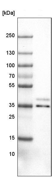 Western blot - Anti-VPS26 antibody [CL2287] - C-terminal (ab211530)