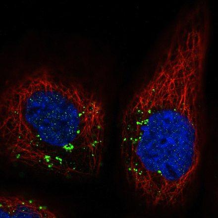 Immunocytochemistry/ Immunofluorescence - Anti-VPS26 antibody [CL2287] - C-terminal (ab211530)