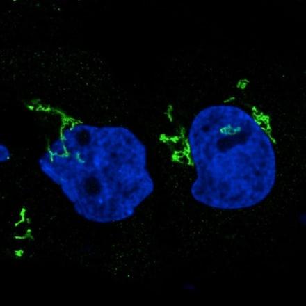 Immunocytochemistry - Anti-GORASP2/GRASP55 antibody [CL2610] (ab211532)