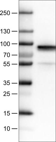 Western blot - Anti-Fibulin 1 antibody [CL0337] (ab211536)