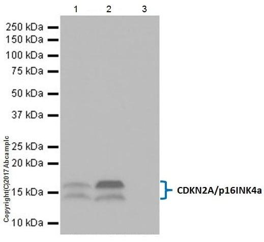 Immunoprecipitation - Anti-CDKN2A/p16INK4a antibody [EPR20418] (ab211542)