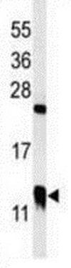 Western blot - Anti-CRP-1 antibody - C-terminal (ab211631)