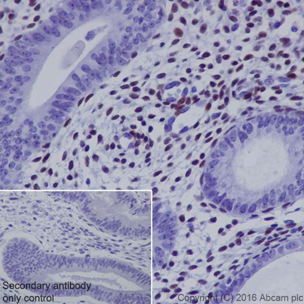 Immunohistochemistry (Formalin/PFA-fixed paraffin-embedded sections) - Anti-NR2F2 antibody [EPR18442] (ab211776)