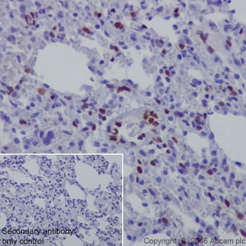 Immunohistochemistry (Formalin/PFA-fixed paraffin-embedded sections) - Anti-NR2F2 antibody [EPR18443] (ab211777)