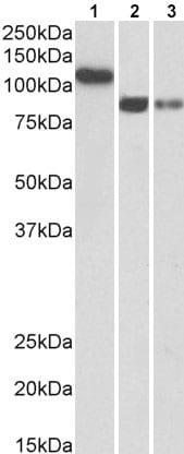 Western blot - Anti-H Cadherin antibody (ab211792)