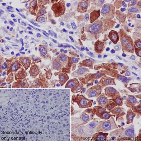 Immunohistochemistry (Formalin/PFA-fixed paraffin-embedded sections) - Anti-TIMP1 antibody [EPR18352] (ab211926)