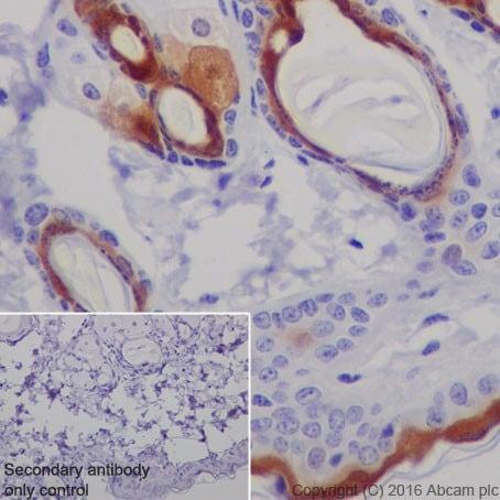 Immunohistochemistry (Formalin/PFA-fixed paraffin-embedded sections) - Anti-CRABP2 antibody [EPR17376] (ab211927)