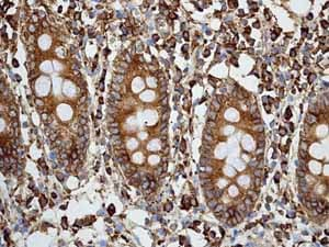 Immunohistochemistry (Formalin/PFA-fixed paraffin-embedded sections) - Anti-Calreticulin antibody [EPR3924] - Low endotoxin, Azide free (ab211962)
