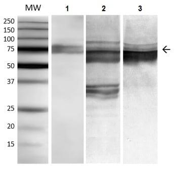 Western blot - Anti-GRP78 BiP antibody [3C5-1A4] (ab212054)