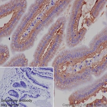 Immunohistochemistry (Formalin/PFA-fixed paraffin-embedded sections) - Anti-CD147 antibody [EPR18008-67] (ab212057)
