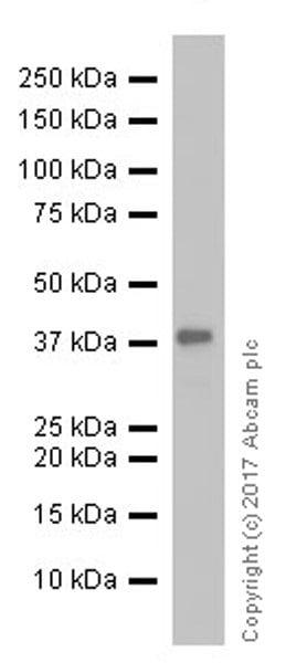 Western blot - Anti-CD40 antibody [EPR18005-4] (ab212058)