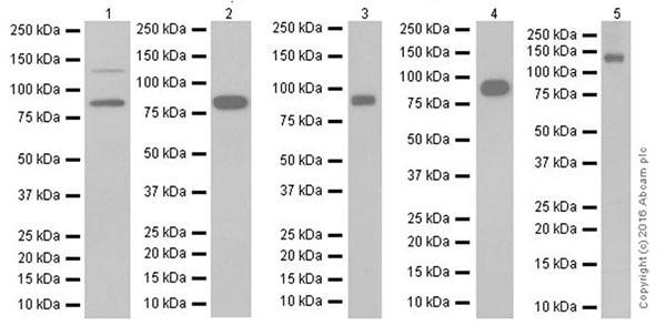 Western blot - Anti-E Cadherin antibody [EPR16845-34] (ab212059)