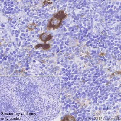 Immunohistochemistry (Formalin/PFA-fixed paraffin-embedded sections) - Anti-CD226 antibody [EPR20710] (ab212077)