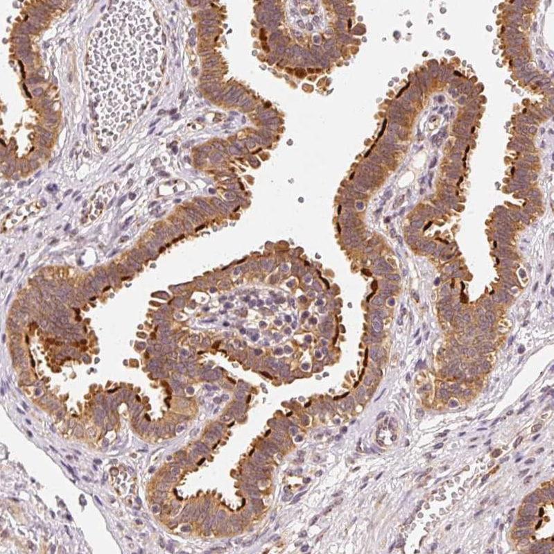 Immunohistochemistry (Formalin/PFA-fixed paraffin-embedded sections) - Anti-EEF1A2 antibody (ab212172)