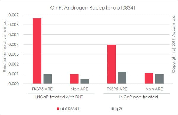 ChIP - Anti-Androgen Receptor antibody [ER179(2)] - BSA and Azide free (ab212175)