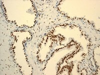 Immunohistochemistry (Formalin/PFA-fixed paraffin-embedded sections) - Anti-Androgen Receptor antibody [ER179(2)] - BSA and Azide free (ab212175)