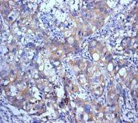 Immunohistochemistry (Formalin/PFA-fixed paraffin-embedded sections) - Anti-SATB2 antibody [EPNCIR130B] - BSA and Azide free (ab212176)
