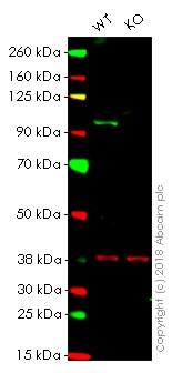 Western blot - Anti-SATB2 antibody [EPNCIR130B] - BSA and Azide free (ab212176)