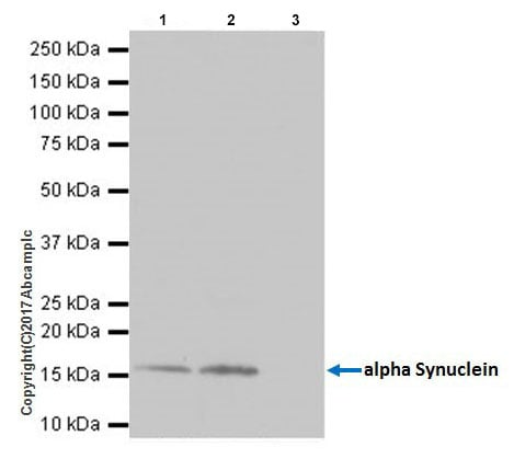 Immunoprecipitation - Anti-Alpha-synuclein antibody [EPR20535] (ab212184)