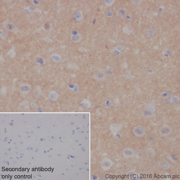 Immunohistochemistry (Formalin/PFA-fixed paraffin-embedded sections) - Anti-Alpha-synuclein antibody [EPR20535] (ab212184)