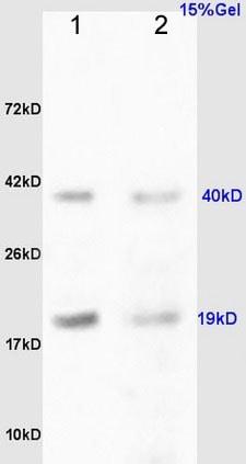 Western blot - Anti-RCL antibody (ab212207)