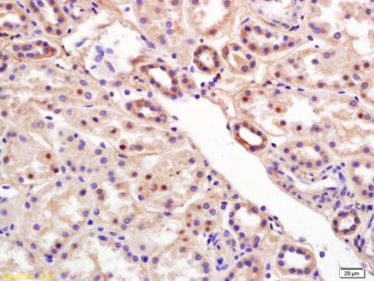 Immunohistochemistry (Formalin/PFA-fixed paraffin-embedded sections) - Anti-RCL antibody (ab212207)