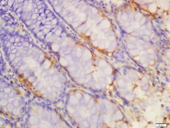 Immunohistochemistry (Formalin/PFA-fixed paraffin-embedded sections) - Anti-IL-1R-2 antibody (ab212208)