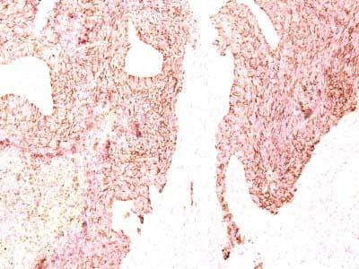 Immunohistochemistry (Formalin/PFA-fixed paraffin-embedded sections) - Anti-Chromogranin A antibody [LK2H10] - BSA and Azide free (ab212290)