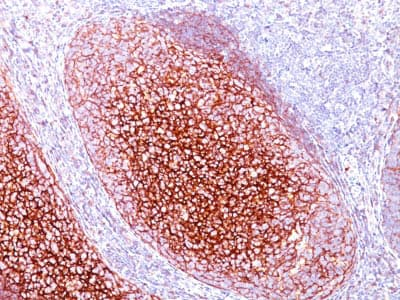 Immunohistochemistry (Formalin/PFA-fixed paraffin-embedded sections) - Anti-CD35 antibody [CR1/802] - BSA and Azide free (ab212311)