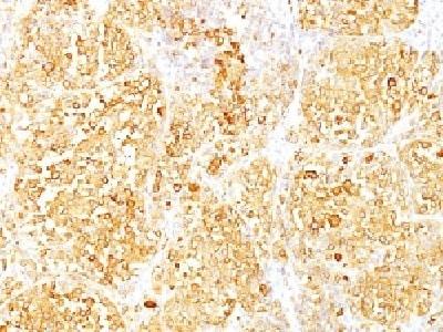 Immunohistochemistry (Formalin/PFA-fixed paraffin-embedded sections) - Anti-MelanA antibody [M2-9E3] - BSA and Azide free (ab212362)