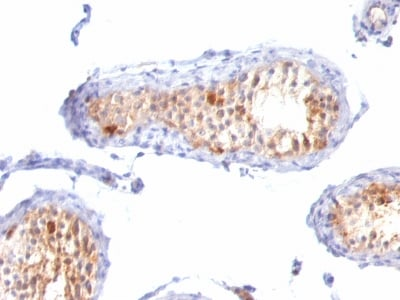 Immunohistochemistry (Formalin/PFA-fixed paraffin-embedded sections) - Anti-MelanA antibody [A103 + M2-7C10 + M2-9E3] - BSA and Azide free (ab212366)