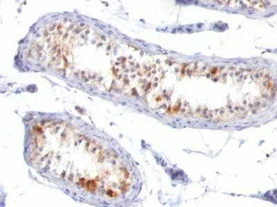 Immunohistochemistry (Formalin/PFA-fixed paraffin-embedded sections) - Anti-MelanA antibody [MLANA/788] - BSA and Azide free (ab212368)