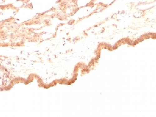 Immunohistochemistry (Formalin/PFA-fixed paraffin-embedded sections) - Anti-Glypican 3 antibody [GPC3/863] - BSA and Azide free (ab212411)