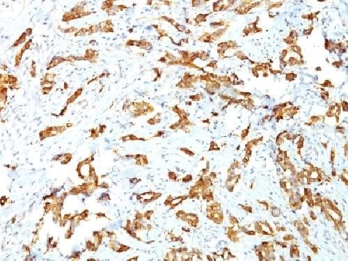 Immunohistochemistry (Formalin/PFA-fixed paraffin-embedded sections) - Anti-Hsp27 antibody [G3.1] - BSA and Azide free (ab212451)