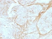 Immunohistochemistry (Formalin/PFA-fixed paraffin-embedded sections) - Anti-Tenascin C antibody [SPM319] - BSA and Azide free (ab212463)